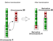 Translocationscan bebalanced(in an even exchange of material with no genetic information extra or missing, and ideally full functionality) or unbalanced (where the exchange of chromosome material is unequal resulting in extra or missing genes).