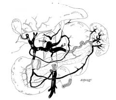 Right hepatic artery