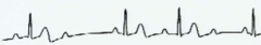 ECG: variable PR intervals, occasionally P wave without QRS or T