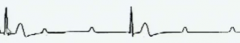 P waves and QRS, T waves not related