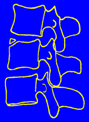 Limbus Bone/Limbic Vertebra