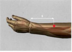 con el codo ligeramente flexionado, 5 Tsun por encima del pliegue articular dorsal de la muñeca, en la parte externa del antebrazo, sobre la línea de unión entre IG 5 e ! G 11