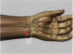 0,5 Tsun por encima del pliegue distal de flexión de la articulación de la muñeca, externamente en relación al tendón del m. flexor cubital carpiano