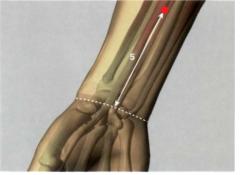 en la cara interna del antebrazo, 5 Tsun por encima del pliegue articular distal de la muñeca, en la línea de unión entre MC 3 y MC 7, entre los tendones del m. palmar menor y el m. palmar mayor