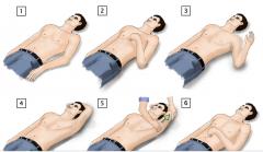 RÜCKENLAGE  Abduktion, Elevation, Außenrotation  Arm hinter dem Kopf ablegen  wenn Ø Reposition: axialer Zug und Manipulation des Humeruskopfes
