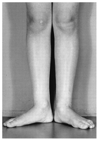 Hx:12yo B c/o R sided anterior knee pain and an outtoeing gait that has worsened over the past few yrs, PE= external foot-progression angle of 25 deg, a thigh-foot axis of +30 degrees, and a positive apprehension test for lateral patellar subluxat...