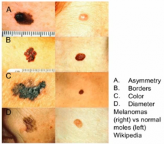 L melanoma R normal   superficial spreading melanoma is most common type (2/3 of cases)