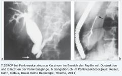 """- Nachweis von Gangveränderungen (Gangabbrüche, Stenosen und prästenotische Dilatationen) - Entnehmen von Biopsien bzw. Pankreassekret zur weiteren Untersuchung - Bei Tumoren im Kopfbereich ist häufig das """"double-duct sign"""" nachweisbar (Ko..."""