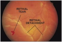 """Most common causes are myopia or surgical extraction of cataracts   Can occur spontaneous    Can also occur secondary to prolif retinopathy or age related macular degeneration    p/w blurry vision in one eye w/o pain or redness & seeing """"floaters""""..."""