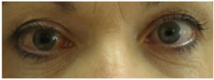 Optho emergency   precipitated by use of medications that have anticholinergic properties    p/w red eye, painful, hard to palpation, and fixed midpoint pupil (can also be vomiting bc of pain)    cornea has hazy cloudiness    marked diminishment o...
