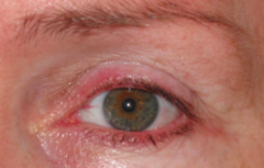 What is the term for chronic inflammation of the eyelid margins?