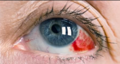 What should you do for patients with subconjunctival hemorrhage?