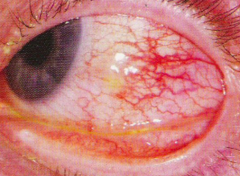 What is the term for localized area of inflammation involving the superficial layers of the episclera?