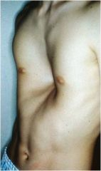 Depression in the lower sternum