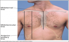 - Midsternal line - Midclavicular line (near nipple line) - Axillary lines (anterior, midaxillary, posterior axillary) - Vertebral line - Scapular line