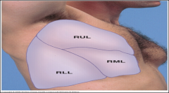 Near 4th rib to midaxillary line near 5th rib.  On right chest, must listen to the lateral chest for right lower lobe (RLL) sounds.
