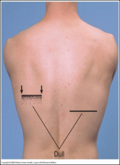 Find level of diaphragmatic dullness during quiet respiration – percuss downward until dullness replaces resonance, confirm laterally and medially.   Estimate the extent of diaphragmatic excursion by determining the distance between the level ...