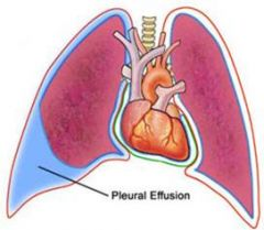Fluid accumulation in the pleural space which separates air filled lung from the chest wall.