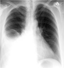 Inspection - diminished or delayed wall motion on affected side  Palpation - decreased fremitus  Percussion - dull to flat over fluid  Auscultation - decreased to absent over fluid, pleural friction rub, bronchophony/whispered pectoriloquy