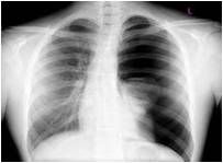 Inspection - tachypnea, cyanosis, distress, tracheal deviation away from pneumothorax  Palpation - decreased to absent fremitus  Percussion - hyperresonant   Auscultation - decreased to absent, possible friction rub  X-ray - dark space is...