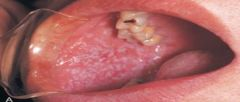 Lichen Planus (diagnosed through clinical and microscopic means)   *topical corticosteroids; good home care, oral examination, discontinue drug use; biopsy*