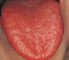 loss of filiform and fungiform papillae on dorsum of the tongue is associated with...