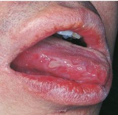 Behcet Syndrome   *systemic and topical corticosteroids*