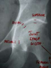 Hip Joint Space Width