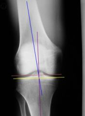 Axial Relationship of Knee Joint
