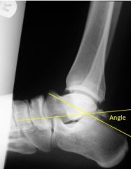Boehler's Angle