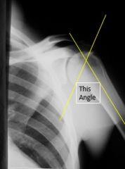 Axial Angle