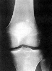 Tripartite Patella