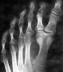 Duplication of the 1st Digit of the Foot
