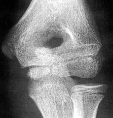 Olecranon Foramen (aka Supratrochlear Foramen)