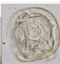 Trematodes from the ingestion of metacercaria encysted on vegetation