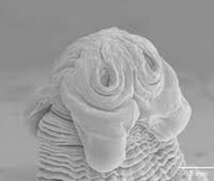 Trematodes from the ingestion of metacercaria encysted in fish, crawdad, crabs, etc