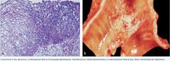 - nicht invasives Malignom (in situ) begrenzt ist und noch keine Metastasen absiedeln kann. - histolopathologisch ein hochgradig atypisches Epithel - kein invasives Wachstum (Basalmembran wird nicht durchbrochen, der Tumor wächst rein intraepithe...
