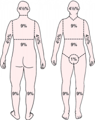 Estimates the percentage of the body covered by burn injuries.  Divides the adult body into sections of 9% (exception: genitals, ~1%).