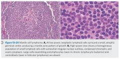Mantle cell lymphoma. The GI involvement is characteristic.   Cyclin D1 protein overexpression due to t(11;14) translocation. Cyclin D1 promotes G1 to S.
