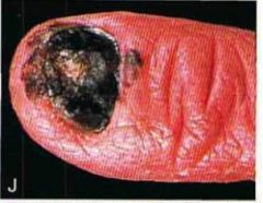 An asian man visits his local physician. He shows him his finger. The physician says that this is related to sun exposure. Is he correct? Give four facts about this condition.