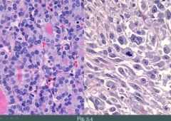 Benign: • Slow growing • Well circumscribed • Distinct  • Mobile  Malignant: • Rapid growing • Poorly circumscribed • Infiltrative • Fixed to surrounding tissue   Remember, malignant tumors can have benign features and vice versa. That's why t