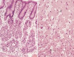 Large, round or pyramid shaped cells. Eosinophilic. Basal located nucleus.  P for Pink. Chief cells look more blue.