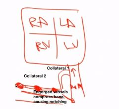 Collateral circulation can develop across intercostal arteries. Engorged arteries cause notching of ribs on x-ray.