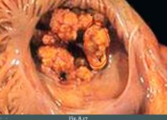 Results in large vegetations that destroy the valve (acute endocarditis)