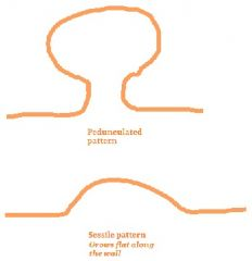 (1) Size (> 2cm) (2) Sessile growth (3) Villous histology (Villous sounds like villain, which is bad) - The polyp can have a bunch of tubular spaces or a bunch of long villous projections.