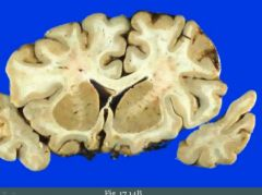 Mark the caudate nucleus, putamen and internal capsule.