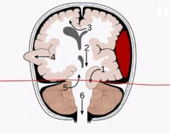 The red line represents? Tumors in adults occur where in the relation to the red line?