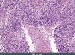"""Note necrosis in the middle and cells """"lining"""" up around it which is called pseudopallisading. Endothelial cell proliferation is also seen (glomeruloid-bodies)."""