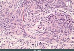 This histologic image could represent what tumor?