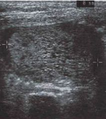 """A pregnant woman is in your office for a checkup early first trimester. On ultrasound you notice that her uterus is abnormally large and you notice a """"snowy"""" appearance on the screen. No fetal heart sounds are heard. Her beta-hCG is higher than expected."""